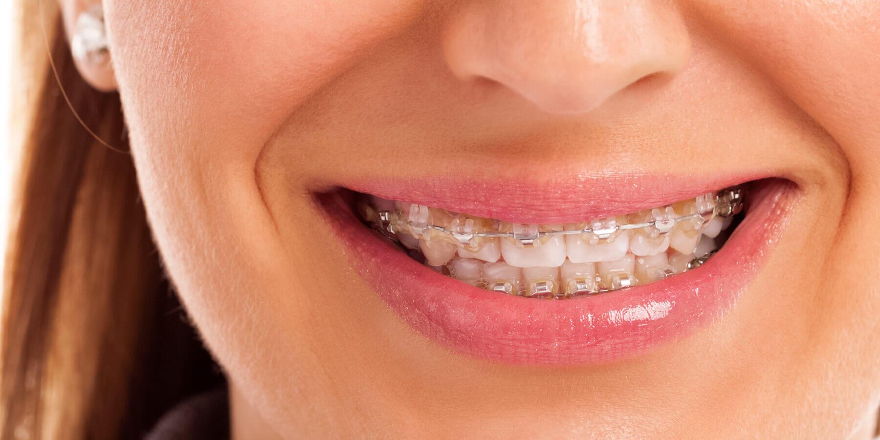 Plano Ortodontia